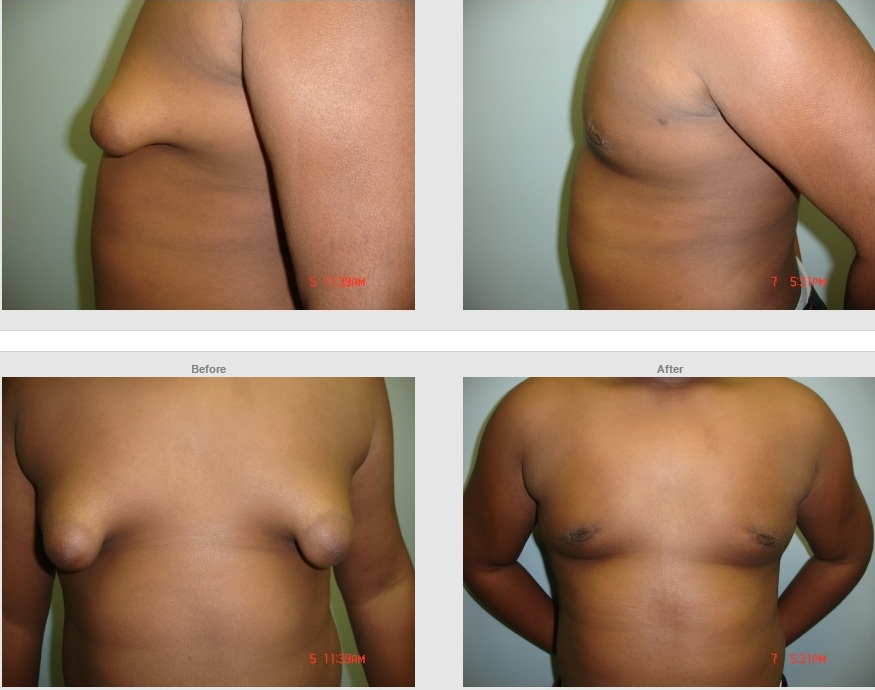 Male breast correction in chennai  A male breast reduction surgery is designed to correct gynecomastia and help achieve a toned, sculpted and manly physique. You don't have to be the laughing stock anymore! Get rid of male breasts, with a Male breast reduction surgery.  Get More Information http://www.desireaesthetics.co.in/male-breast-liposuction-in-chennai.html  https://youtu.be/ot8Jk4RD_SI