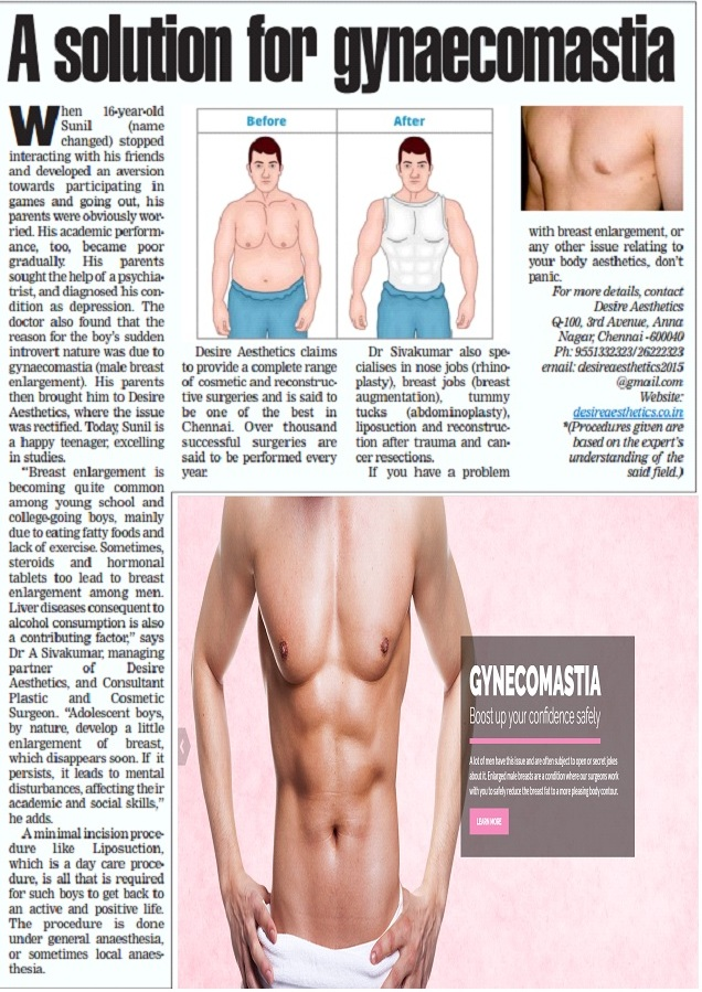 A Solution for Gynaecomastia - Today times of india (Chennai Times) Page No: 5