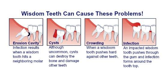 Dental Hospital in Tambaram. Pari Dental Hospital is in Tambaram which has a friendly group of experienced doctors. Consultation for dental implants, wisdom teeth removal, teeth fixing is provided.