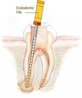 Rootcanal Treatment in MMDA # Rootcanal Treatment in MMDA  Rootcanal Treatment in Annanagar #Rootcanal Treatment in Annnagar  The dentist numbs the tooth. An opening is made through the crown of the tooth to the pulp chamber