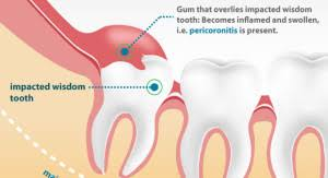 Dental hospital in Tambaram. Pari Dental Hospital is the Best Dental Hospital , excellence in patient care, pain free treatments of tooth removal etc. For consultations call the Pari Dental at 9884242784.