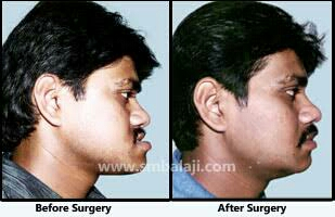 We are The Best Jaw Correction Center In T Nagar