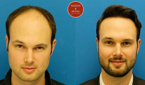 We are The Best Hair Transplant Center In T Nagar