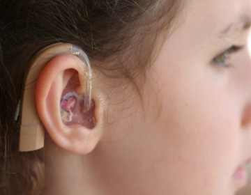 Decibel Clinic is the hearing and Speech loss. We provide all kind of hearing aid and Speech Therapy with Latest medical equipment, diagnostic systems and state-of-art facility at our clinics ensure quality care and treatment.