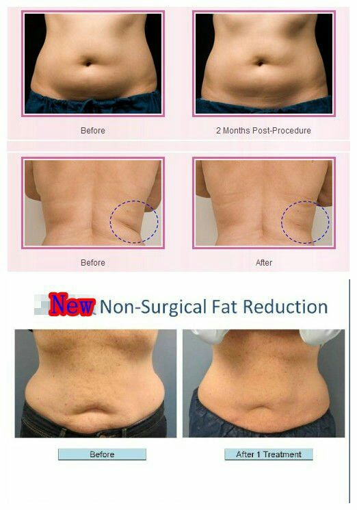liposuction centers in Hyderabad best liposuction center in Hyderabad we use quality and high end equipment for non surgical liposuction with safe and secure precautions