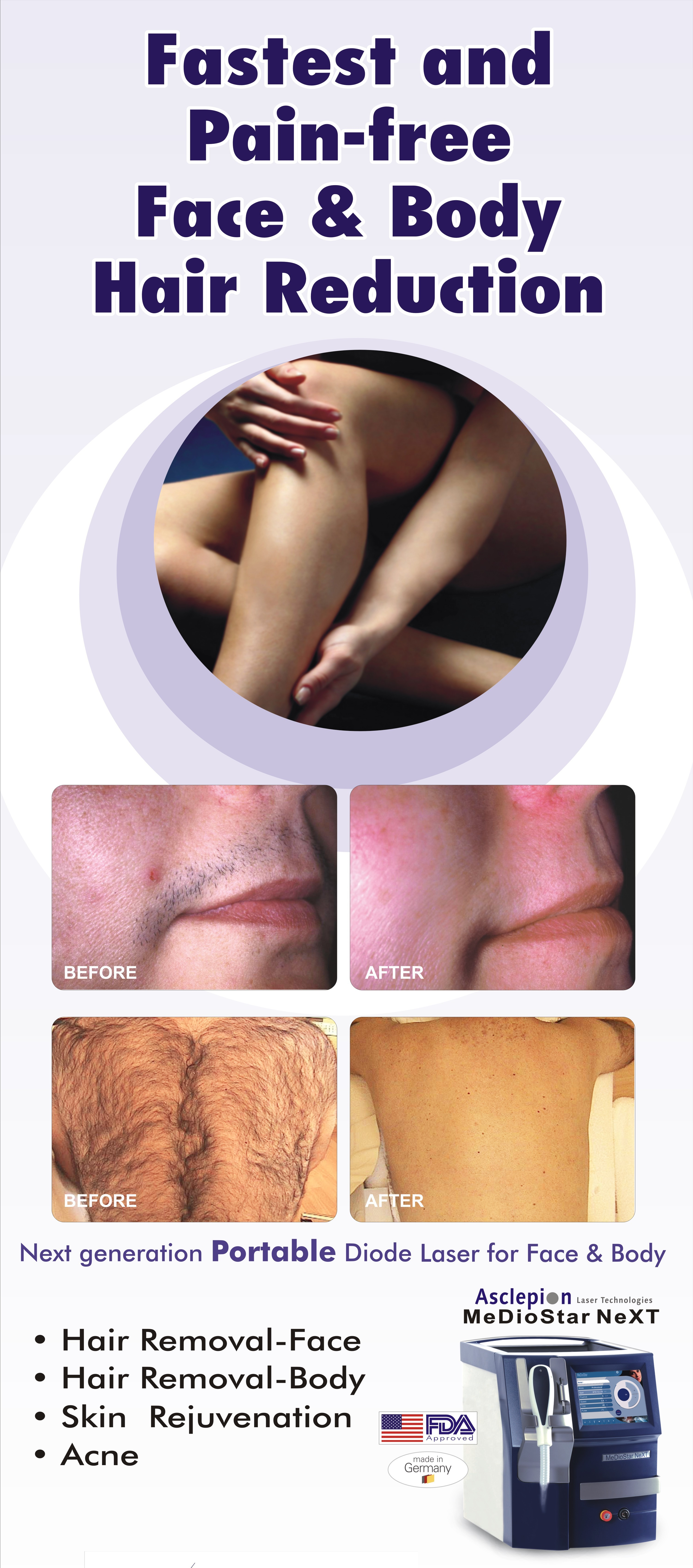 Laser hair removal is an increasingly popular non-surgical cosmetic procedure. It is a non-invasive, convenient method to reduce hair growth.