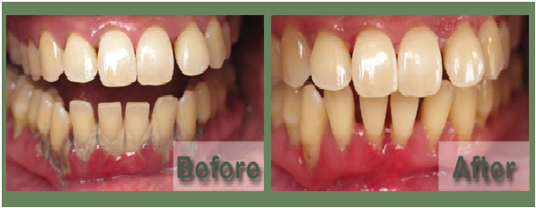 Gum Treatment  Inflammation of the gums is caused by bacteria and is called gingivitis. In this case, gums become swollen and tend to bleed easily. In such cases regular cleaning by a dentist is a must.   Best dental clinic in Shalimar Bagh
