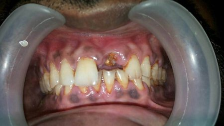 Fractured tooth to be replaced by an implant - by Dental Aura, Hyderabad