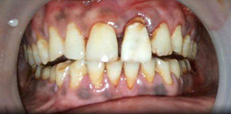 Immediate temporary tooth - by Dental Aura, Hyderabad