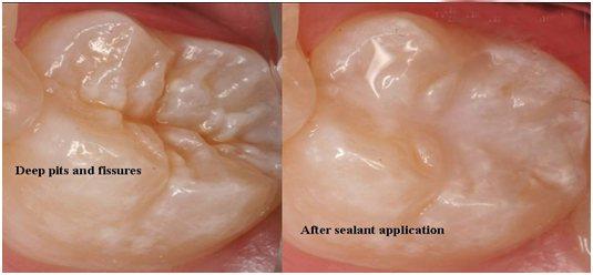 Dental Sealents in Ashok vihar - by MODERN DENTAL CARE, Delhi