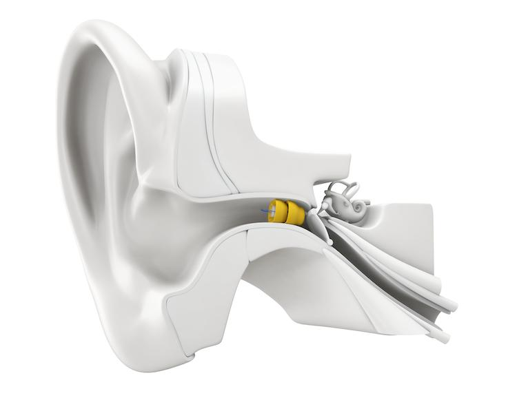 we have All kinds of Hearing Aids to our customers and in good quality - by Micro Hearing Aids, Chennai
