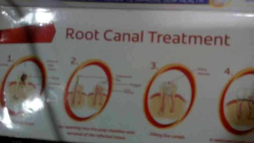 we are leading root canal treatment service provider in Rajkot. - by Noble Dental Care, Rajkot