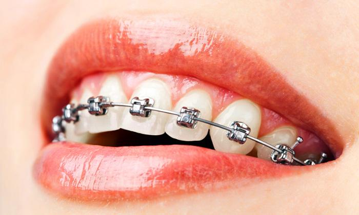 Braces treatment  Consult for braces treatment in rohini, we provide best shape to your teeth to look beautiful. - by Prosit Dental Care, Utsunomiya-shi