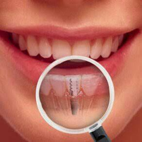 dental implant..... to restore your natural missing teeth without harming the adjacent teeth.. we have the most advanced dental treatments with latest equipments.. - by Prosit Dental Care, Utsunomiya-shi