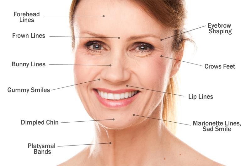 facing wrinkles problem ? #botox injection will help you and you will got a younger look. To know more about this procedure you can enquire us via mail as well phone call. See more about botox treatment here http://www.kashyapskinclinics.co - by Kashyap Skin Clinic ( Dermatologist in New Delhi,Skin Specialist in New Delhi) 9718551800, Delhi