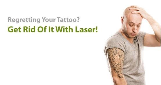 #Laser #TattooRemoval   with World's Best Laser . For More Details Contact us. #tattooclinic #colortattooremoval  #Hospital  #clinic  - by Kashyap Skin Clinic ( Dermatologist in New Delhi,Skin Specialist in New Delhi) 9718551800, Delhi