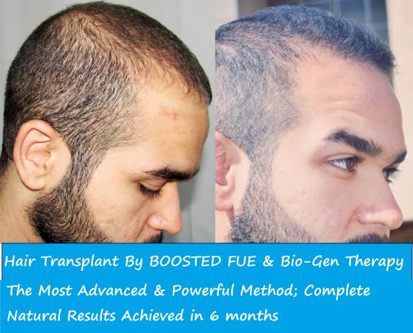 Are you suffering from continuous Hair Loss? People started calling you 'Bald Uncle'? Don't worry. Contact us now.  For more info: http://dermalife.co.in/  Dermalife - Hair Transplant in Green Park, Delhi - by Dermalife - Redefine Yourself, New Delhi