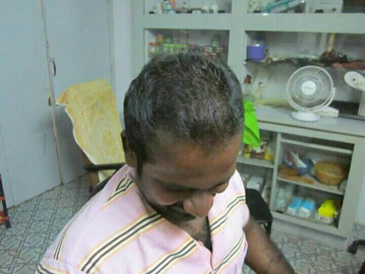 After treatment - by V-hi-tech hair & Skin Spa, Dindigul