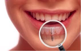 best dental implant in paharganj for more details contact us or book an appointment - 9717302127 - by Noble Dental Care, Central Delhi
