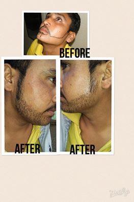 BEARD HAIR TRANSPLANT - by Karam Hair Transplant Centre[ KHTC INDIA], Ludhiana