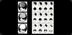 BEST HAIR LOSS TREATMENT IN BANGALORE  Trichology Medical Treatments, Nutritional Evaluation & Supplementation Hair Transplant - Strip Technique Hair Transplant - Fuet Technique http://drgvg.com/pics/Trichology-img.png It is a standard and - by DrGVG Aesthetic Clinics, Bangalore