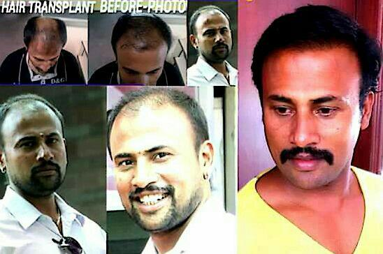 BEST HAIR TRANSPLANT IN BANGALORE IS HERE - by DrGVG Aesthetic Clinics, Bangalore