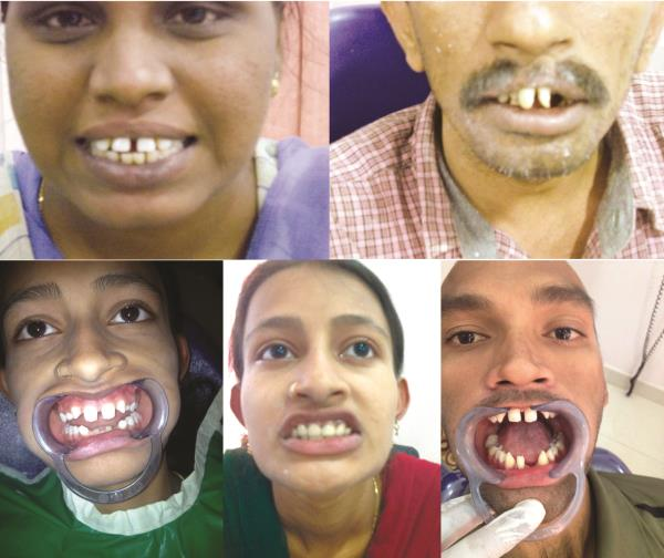 Do You Have Spaces Between teeth? Don't worry We treat them by #SmileDesigning @AyushDentalClinic in Koramangala, Bengaluru. - by Ayush Speciality Dental Care, Bangalore
