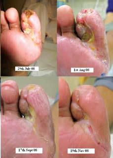 Treatment Diabetic Foot - by Dr. Bhamres Nulife Oxygen Clinic, Nashik