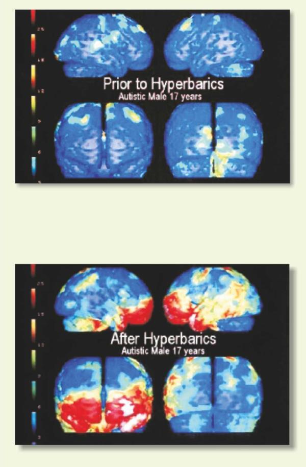 Treatment Brain Injury - by Dr. Bhamres Nulife Oxygen Clinic, Nashik