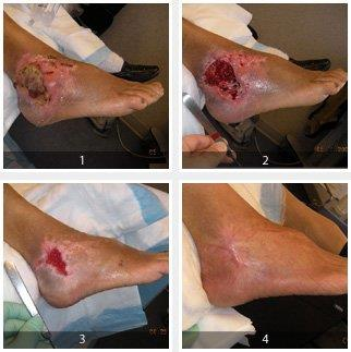 Treatment Diabetic Wound - by Dr. Bhamres Nulife Oxygen Clinic, Nashik