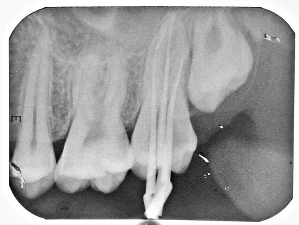 RCT : clinical cases - by Saha Dental Clinic, Kolkata