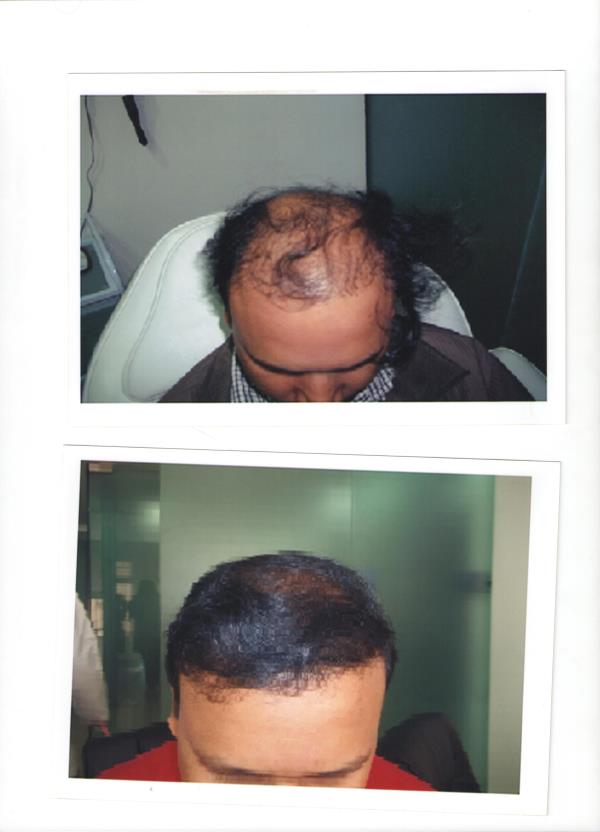 hair transplant in ur cost in mal;leshwaram 18th cross - by Dg Clinic, Bangalore