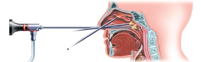 Best Endoscopy centres in Chandigarh  Endoscopy is a nonsurgical procedure used to examine a person's digestive tract. Using an endoscope, a flexible tube with a light and camera attached to it, your doctor can view pictures of your digesti - by Vishwas Hospital, Chandigarh