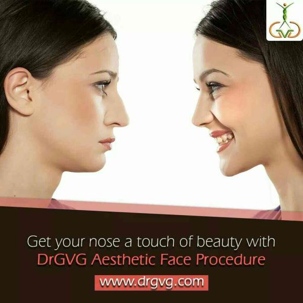 Best Nose Job Rhinoplasty correction keyhole Surgery with invisble scar at DrGVG Aesthetic Clinics, Jayanagar, Bangalore, India - by DrGVG Aesthetic Clinics, Bangalore