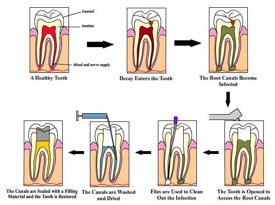 This image shows how a caries progresses and shows how a root canal is done - by Sv Dental Care & Implant Centre, Hyderabad