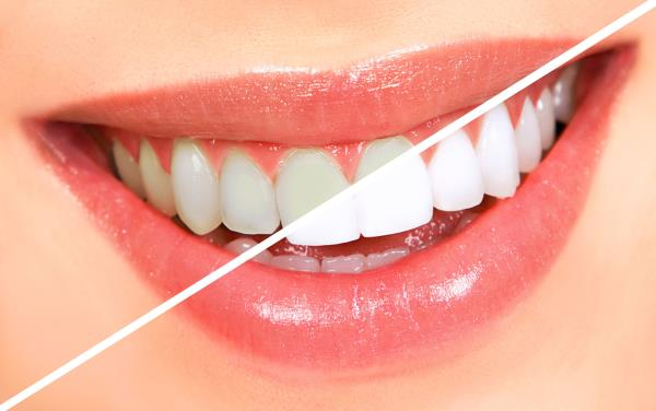 We can Greatly Enhance the appearance of your Teeth and Smile with #TeethWhitening @AyushDentalCare #BestDentalHospital - by Ayush Speciality Dental Care, Bangalore