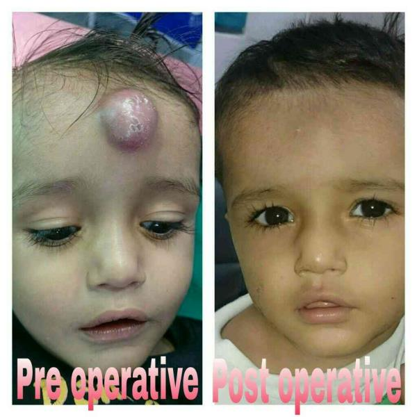 At White lily children surgical hospital we provide an excellent care taking care not only of various problems but also of their cosmetic results....  - by White Lily Children Surgical Hospital, Ahmedabad