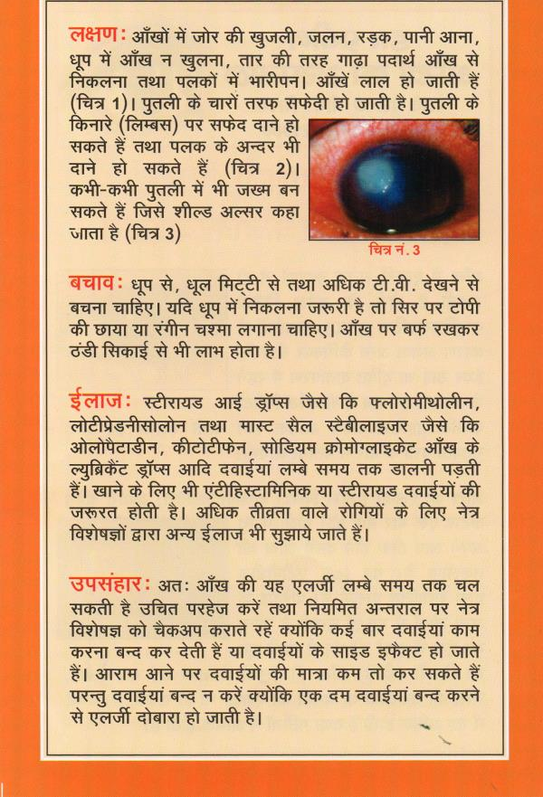 Allergy - by Dr Praveen Eye Hospital & Research Centre, Sirsa