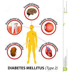 Diabetes mellitus (DM), commonly referred to as diabetes, is a group of metabolic diseases in which there are high blood sugar levels over a prolonged period.[2] Symptoms of high blood sugar include frequent urination, increased thirst, and - by Diabetic Hospital Erode - Nithish Diabetic Centre, Erode