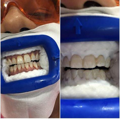 """Get your Teeth Sparking in just 30 min with Advanced Philips Zoom Teeth Whitening. """"Best Dental Clinics in Koramangala Bangalore"""". - by Ayush Speciality Dental Care, Bangalore"""