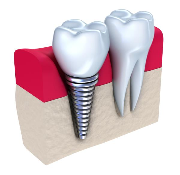 We always strive for the best results possible, and are always trying to deliver the type of service that makes our Patients Smile! We offer affordable, high quality #DentalImplants and #DentistryServices in our state-of-the-art facility. - by Ayush Speciality Dental Care, Bangalore