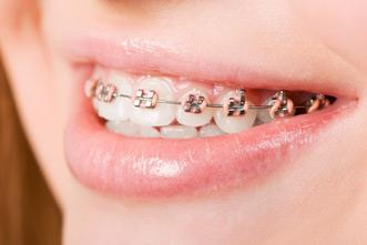 Best orthodontist in Central Delhi . - by Muskan Dental Care, West Delhi