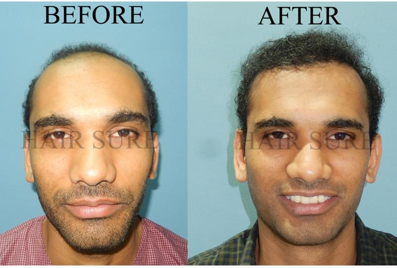 Fue hair transplant is a new technic in Hair transplantation, this surgery gives you 100% results to get your hair back with no scars after the surgery.  - by Hair Sure Hair Transplant Centre, Hyderabad, Telangana