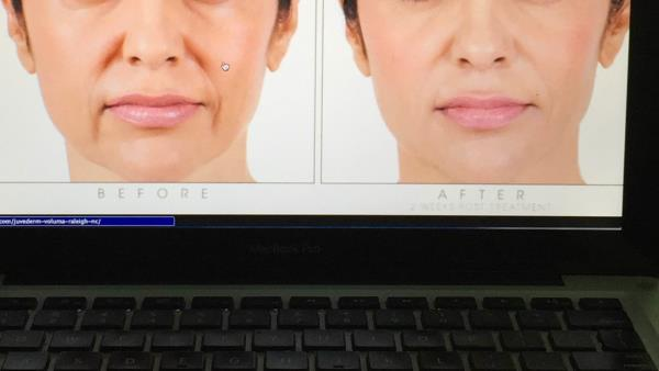 For fillers this is great Lough lines have improved This can remain for about a year On can alway give a touch up to improve it further - by American Laser Clinic, C-123,GK one ,New Delhi