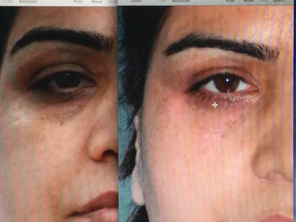 What fillers can do😳 Under eye dark circles is a very common condition Lots of people have accepted it.  But now we have a treatment for it. Quick and safe!👍 Please tell me if u like this - by American Laser Clinic, C-123,GK one ,New Delhi