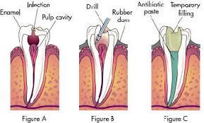 Single visit Root Canal treatment in Central Delhi . - by Muskan Dental Care, West Delhi