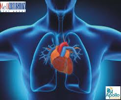 Cardiologist Jobs in Saudi Arabia  Bio Plannet is providing Training and coaching for Saudi Arabia Medical Licensing Exam for Nursing in all over India.  More info :  www.bioplannet.com  - by Bio Plannet India Pvt Ltd, Coimbatore