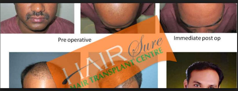 Fue Hair transplant is a safest surgery and you can avail this with best possible budget with hair Sure Hair Transplantation.   For consultation please call us or drop us a message from an make an enquiry box - by Hair Sure Hair Transplant Centre, Hyderabad, Telangana