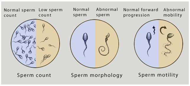Male Evaluation:  CASA ( Computer Assisted Sperm Analysis)  DNA Fragmentation ( Sperm Chromatin Dispersion Assay)  Sperm Function Tests   Hormone Evaluation   Sperm Aneuploidy  Scrotal Doppler   - by Pooja Fertility Centre | Andrologists | Vizag, Visakhapatnam