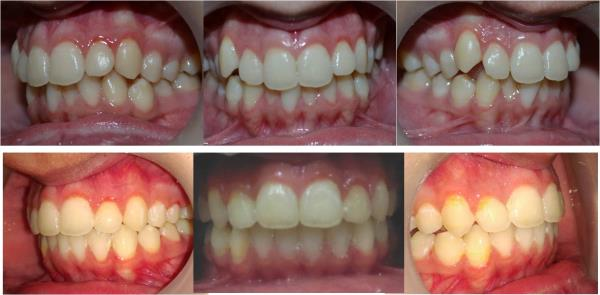Fixed Orthodontic Treatment Can Improve Your Smile By Properly Aligning The Irregular And Crooked Teeth.  Visit Your Nearest Orthodontist for Consultation. - by Expert Clinics: Complete Dental, Ayurveda & Cosmetic Care, Agra